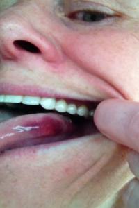 First tri Tongue